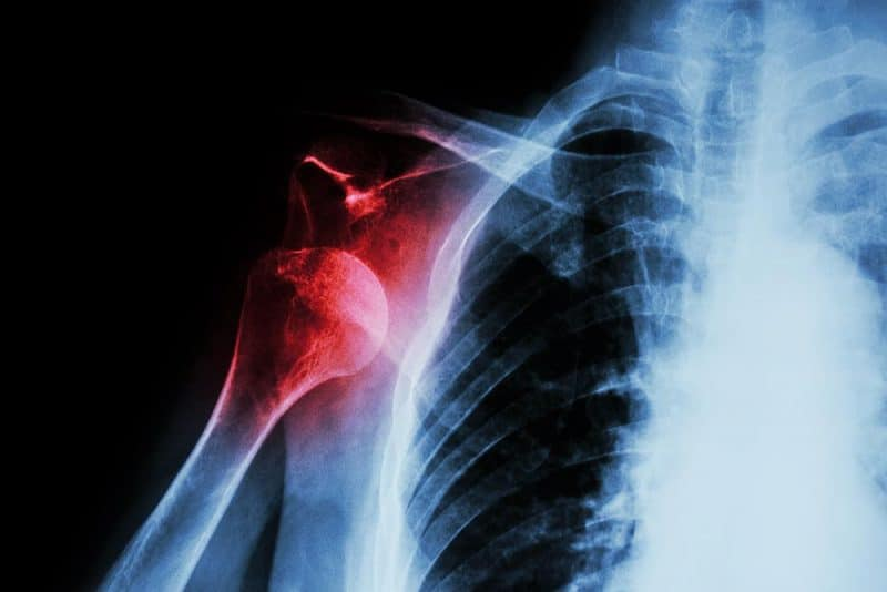 X-ray of injured shoulder joint